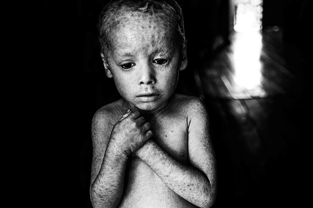 Pablo Ernesto Piovano, The Human Cost of Agrotoxins, 2015