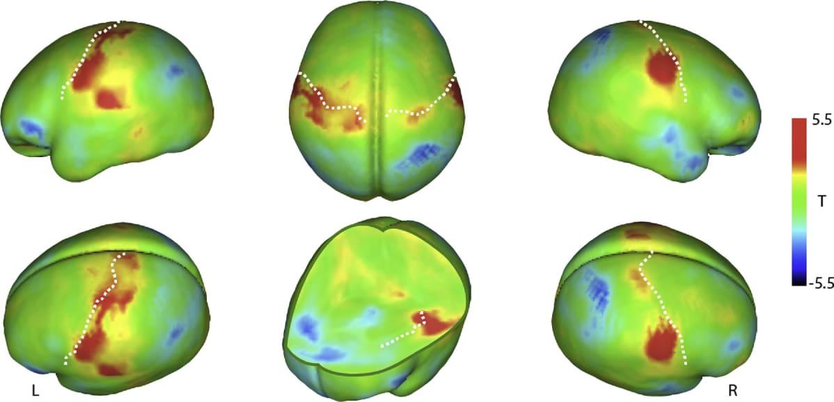 Aivojen aktivaatiokartassa näkyy, mitkä alueet reagoivat hellään silittämiseen.