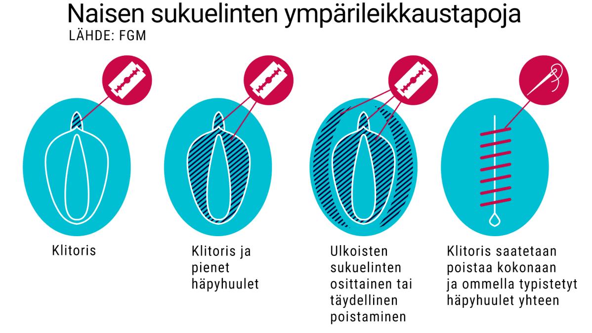 naisen sukuelimen ympärileikkaustapoja, grafiikka