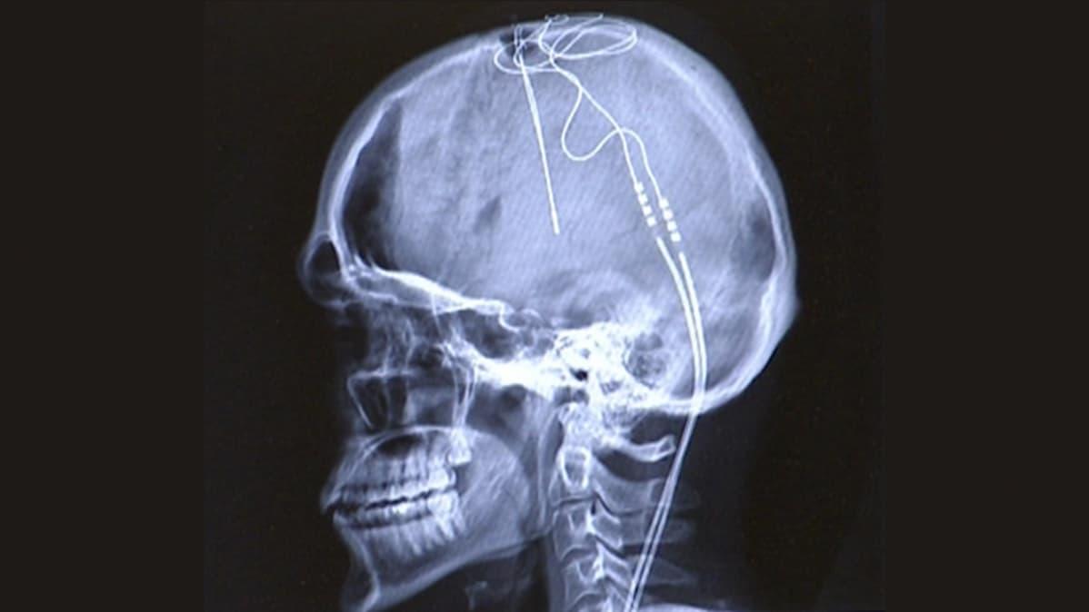 Röntgenkuva päähän sijoitetuista johdoista.