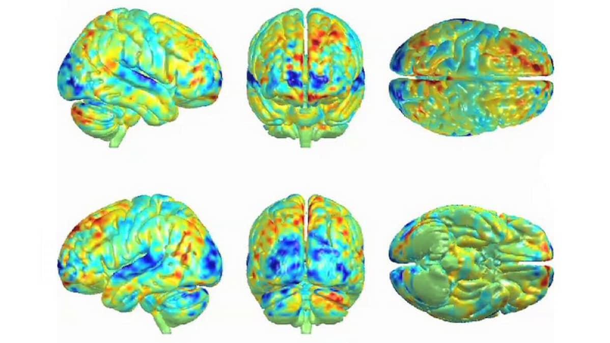Kuusi magneettikuvaa ihmisaivoista.