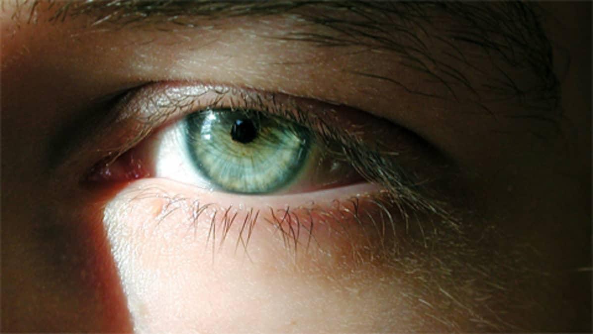 Silmä.Silmän näkökentässä voi välillä näkyä kummia.