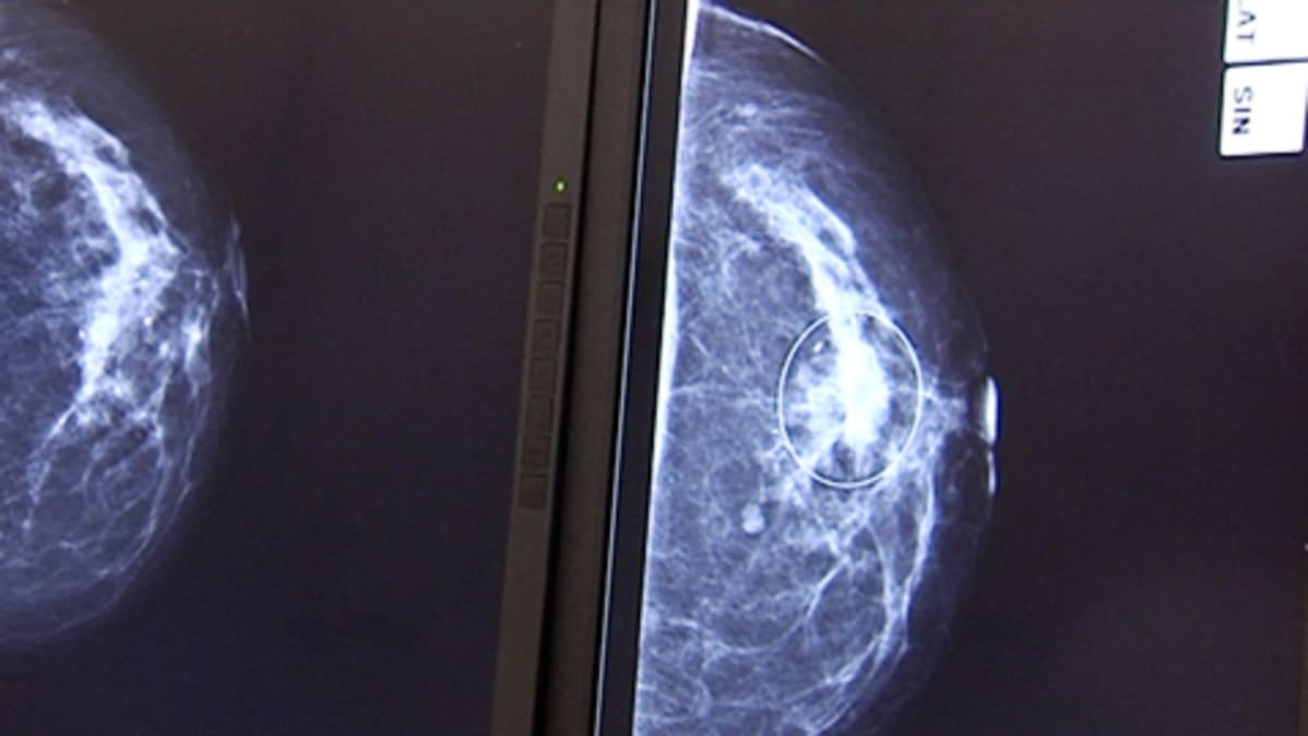 Mammografiakuva naisen rinnassa olevasta syöpäkasvaimesta.