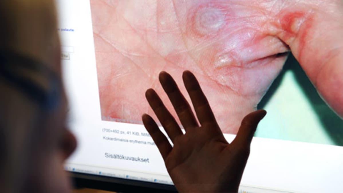 Nainen tutkii internetistä löytämäänsä kuvaa käden ihomuutoksista