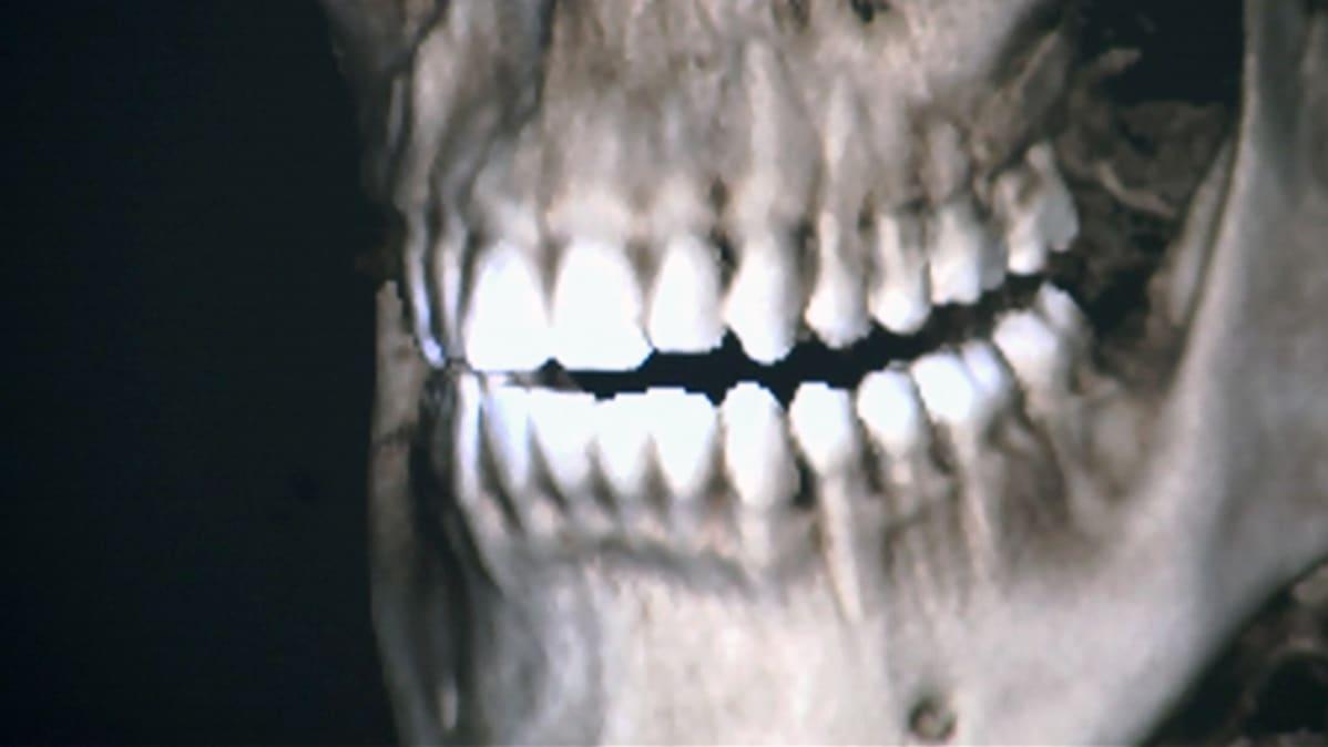 Röntgenkuva hampaista.
