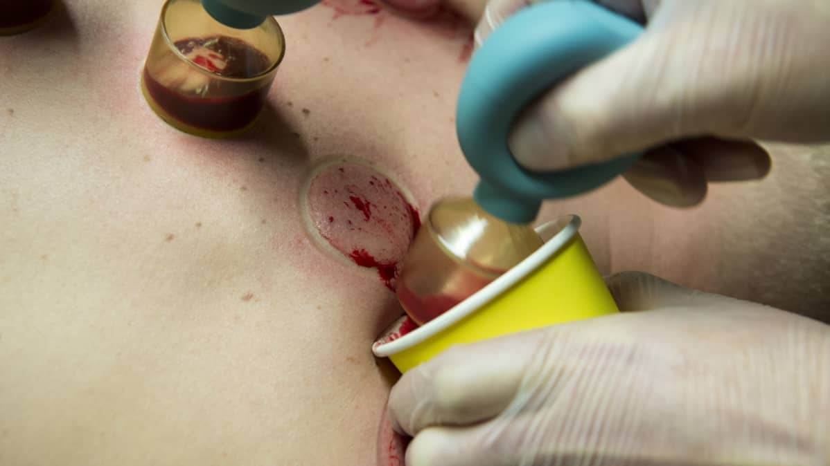 Kuppaussarveen kertynyttä verta kaavitaan pois pahviseen kuppiin.