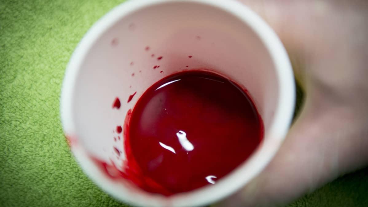 Kuppauksessa kertynyttä verta purkissa.