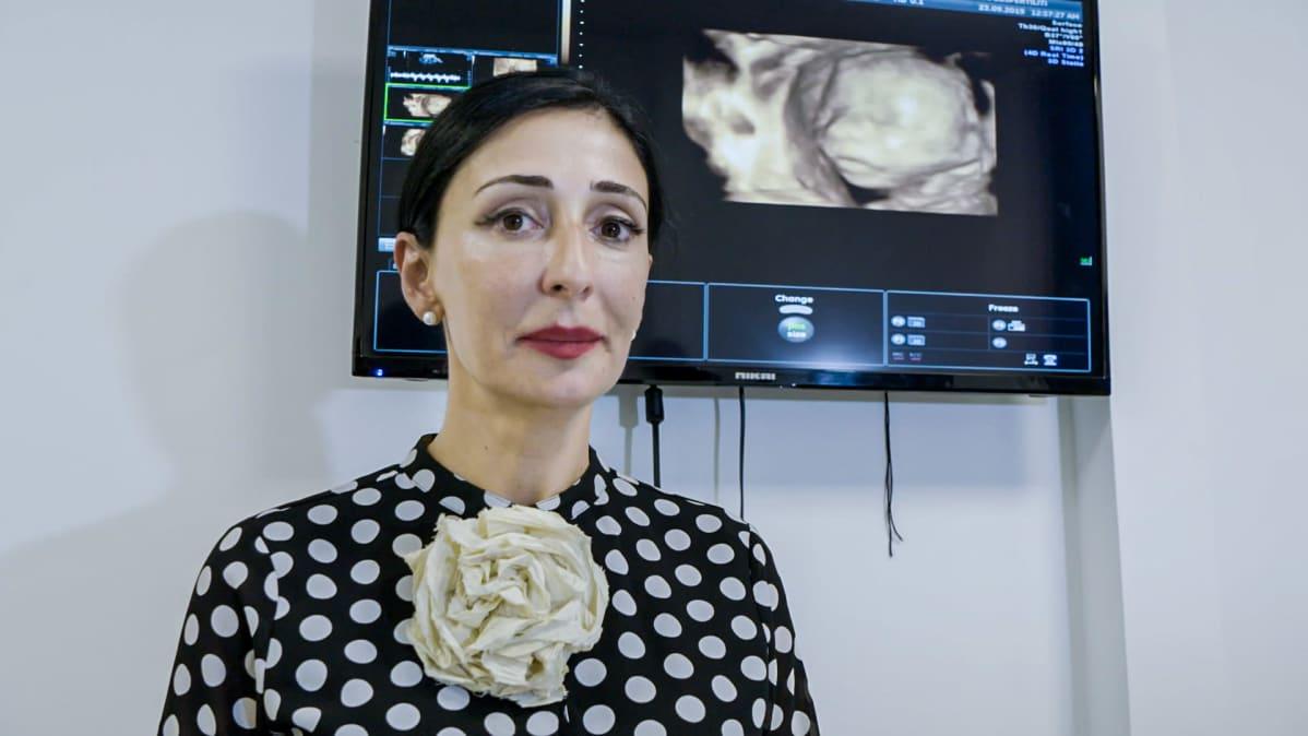 Nainen seisoo ultraäänimonitorin edessä sikiön kuva taustalla.
