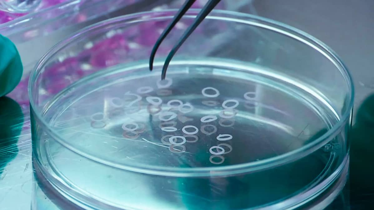 "Lihassoluista muodostuneita rengasmaisia ""lihaksia"" laboratorion petrimaljassa."