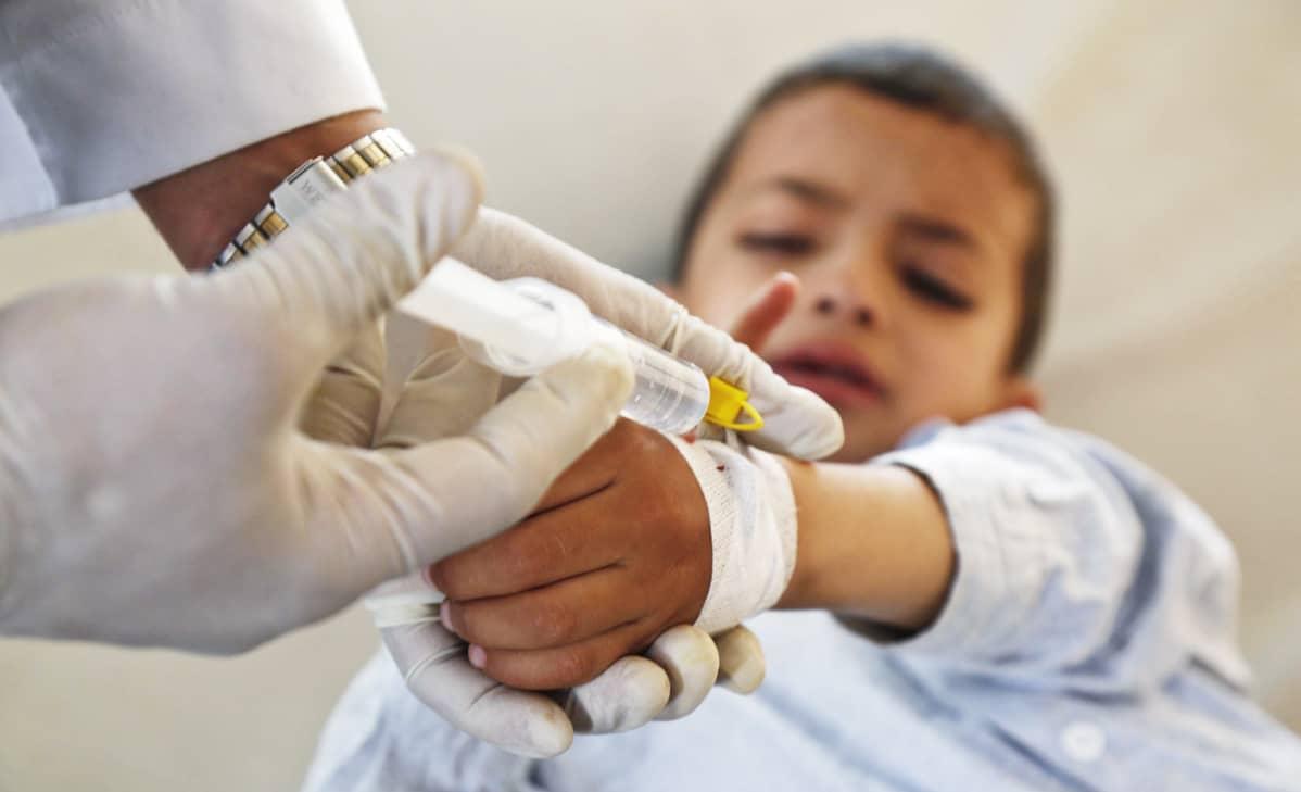 Koleraan sairastunut lapsi sairaalassa.