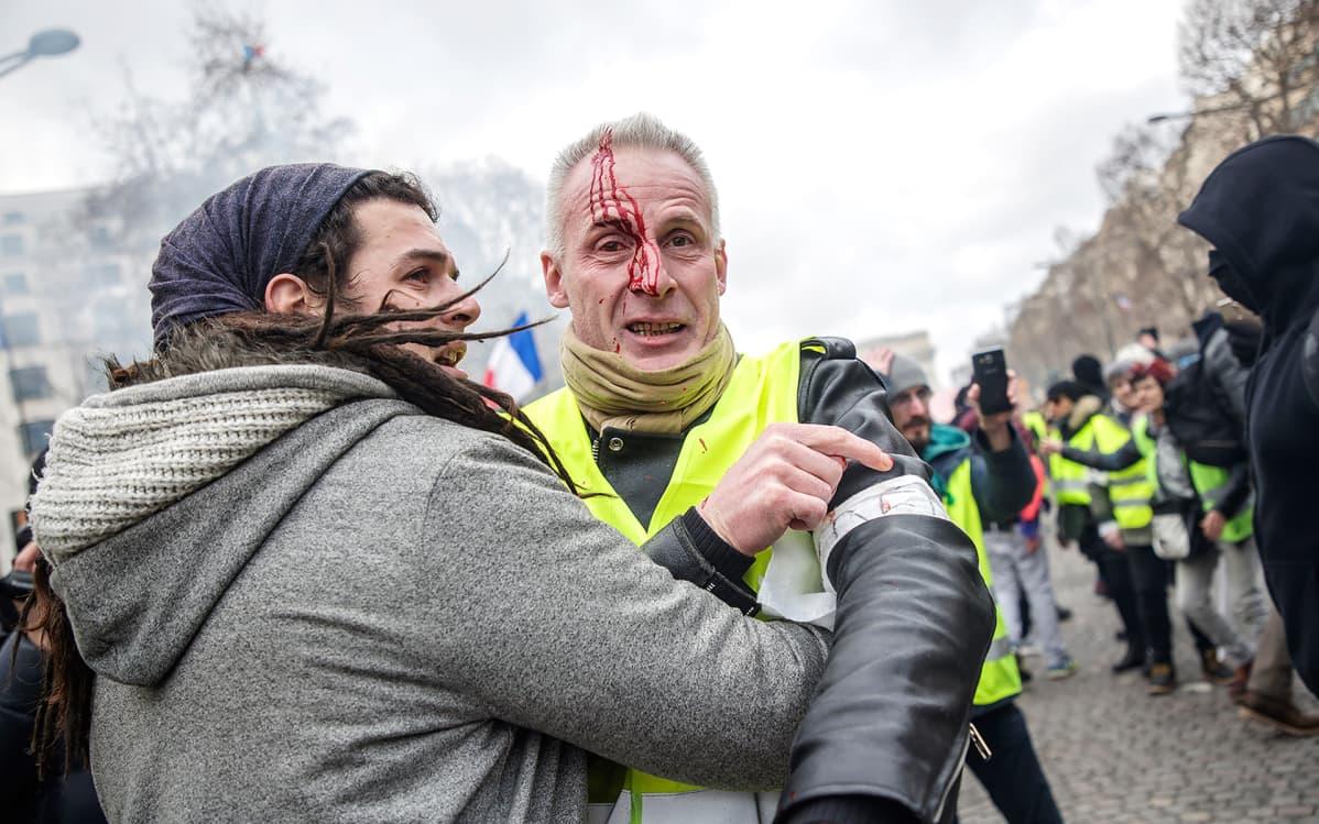 Keltaliivinen mies on saanut verta vuotavan haavan päähänsä lauantaisessa mielenosoituksessa Pariisin kaduilla.