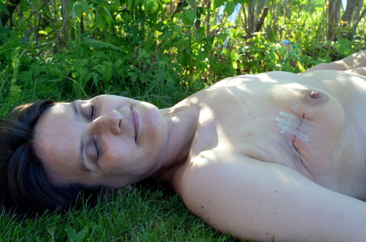 nainen makaa selällään leikkaushaava rinnassaan