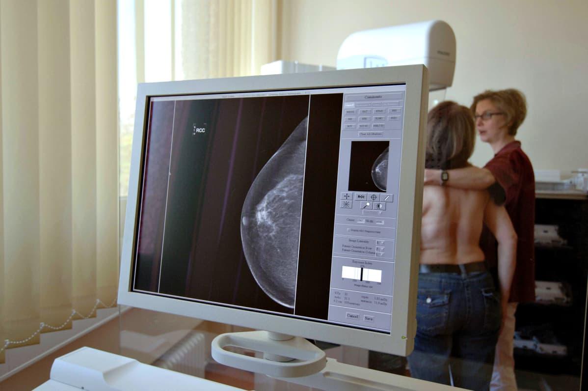 Mammografiakuvaus.