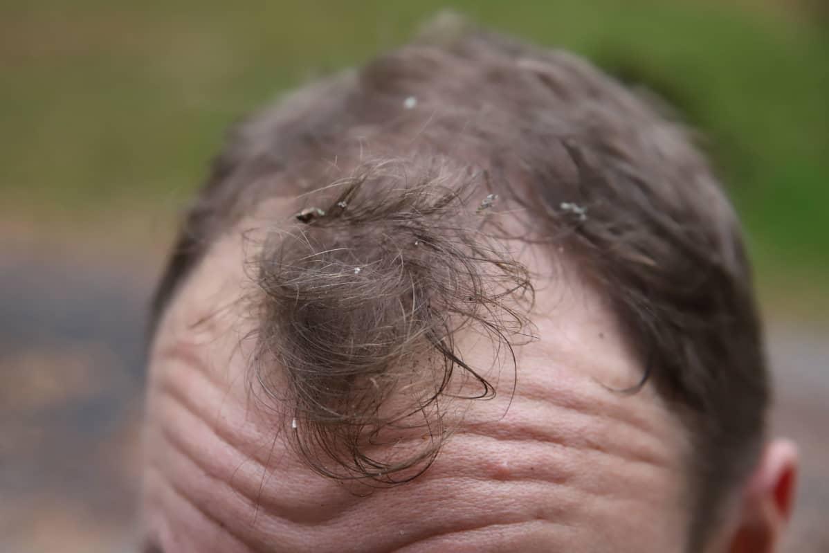 Koivun pinnalla kasvavaa sammalta miehen hiuksissa.