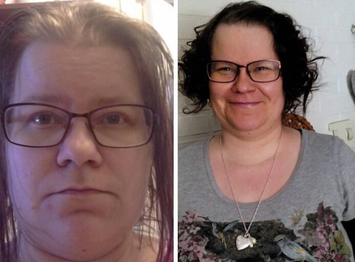 Sanna Pohjaniemi ennen ja jälkeen poisto-operaation