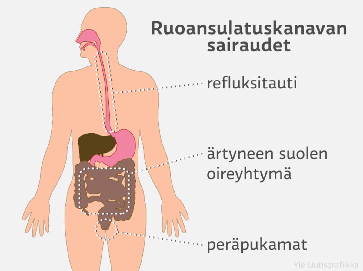 ruoansulatuskanavan sairaudet