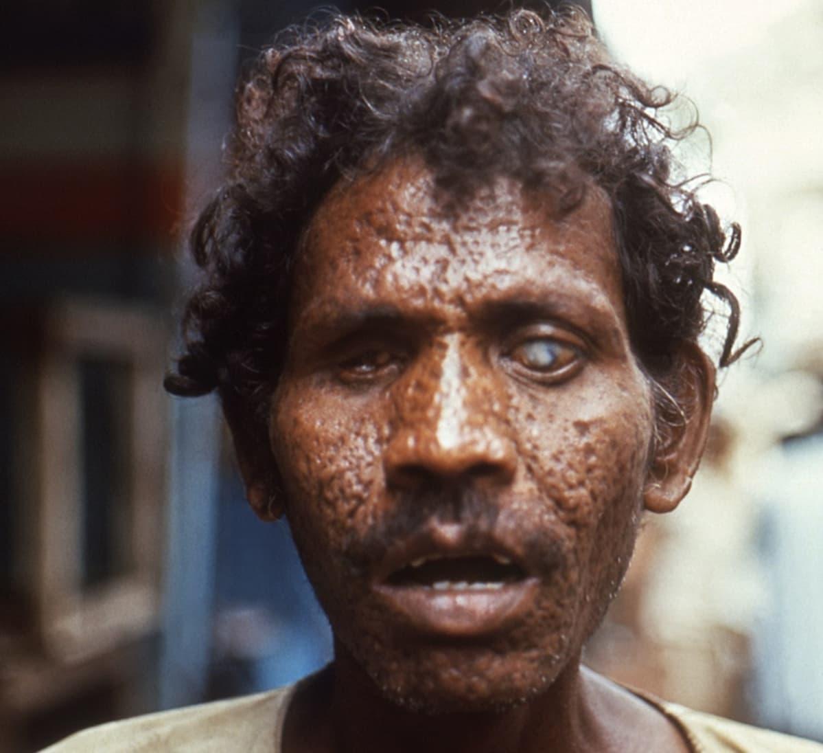kasvokuva miehestä, jonka kasvot ovat rokonarpiset ja silmät sokeat.