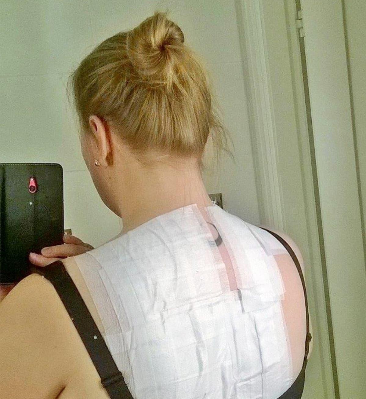Kati Kristiina Mouhulla testataan, mille kaikille aineille hän on herkistynyt tai allergisoitunut.