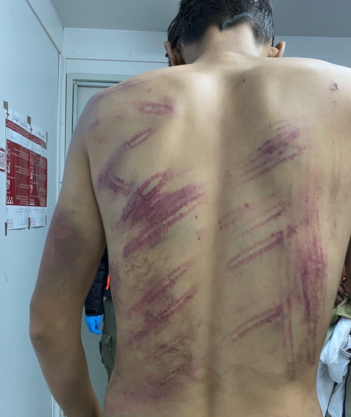 DRC:n haastattelema afganistanilaismies kertoi poliisin lyöneen häntä ja pakottaneen hänet ja seitsemän muuta miestä makaamaan toistensa päälle. [TOM TÄSSÄ SUN ALKUP KUVATEKSTI: Tanskan pakolaisneuvoston lokakuussa 2020 haastattelema afganistanilaismies kertoi poliisin lyöneen ja pakottaneen kahdeksan hengen ryhmän jäseniä makaamaan toistensa päälle.]