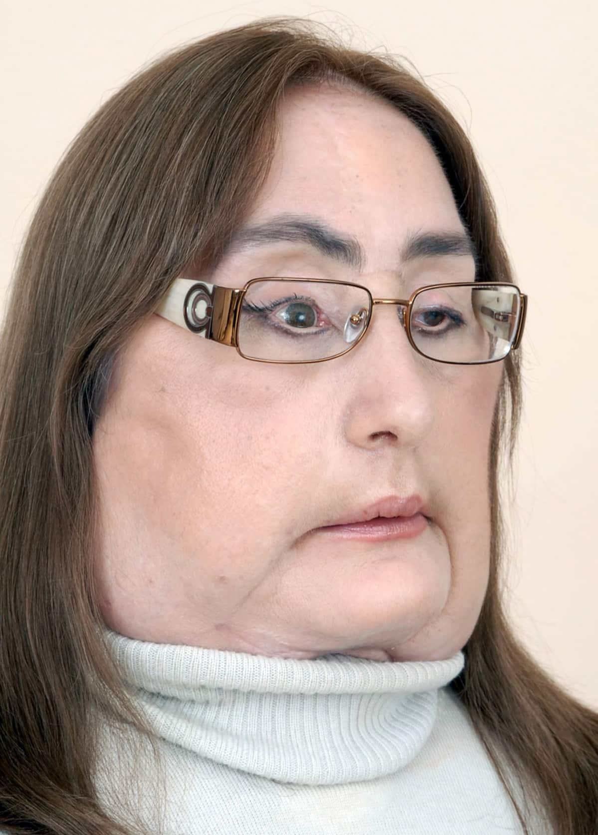 kasvonsiirtopotilas