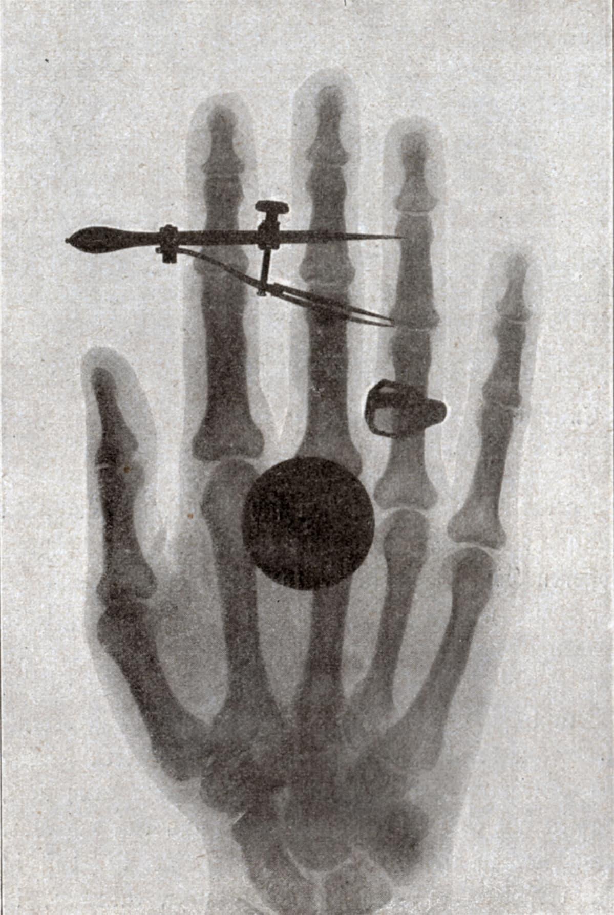 Wilhelm Röntgenin vaimon läpivalaistu käsi.