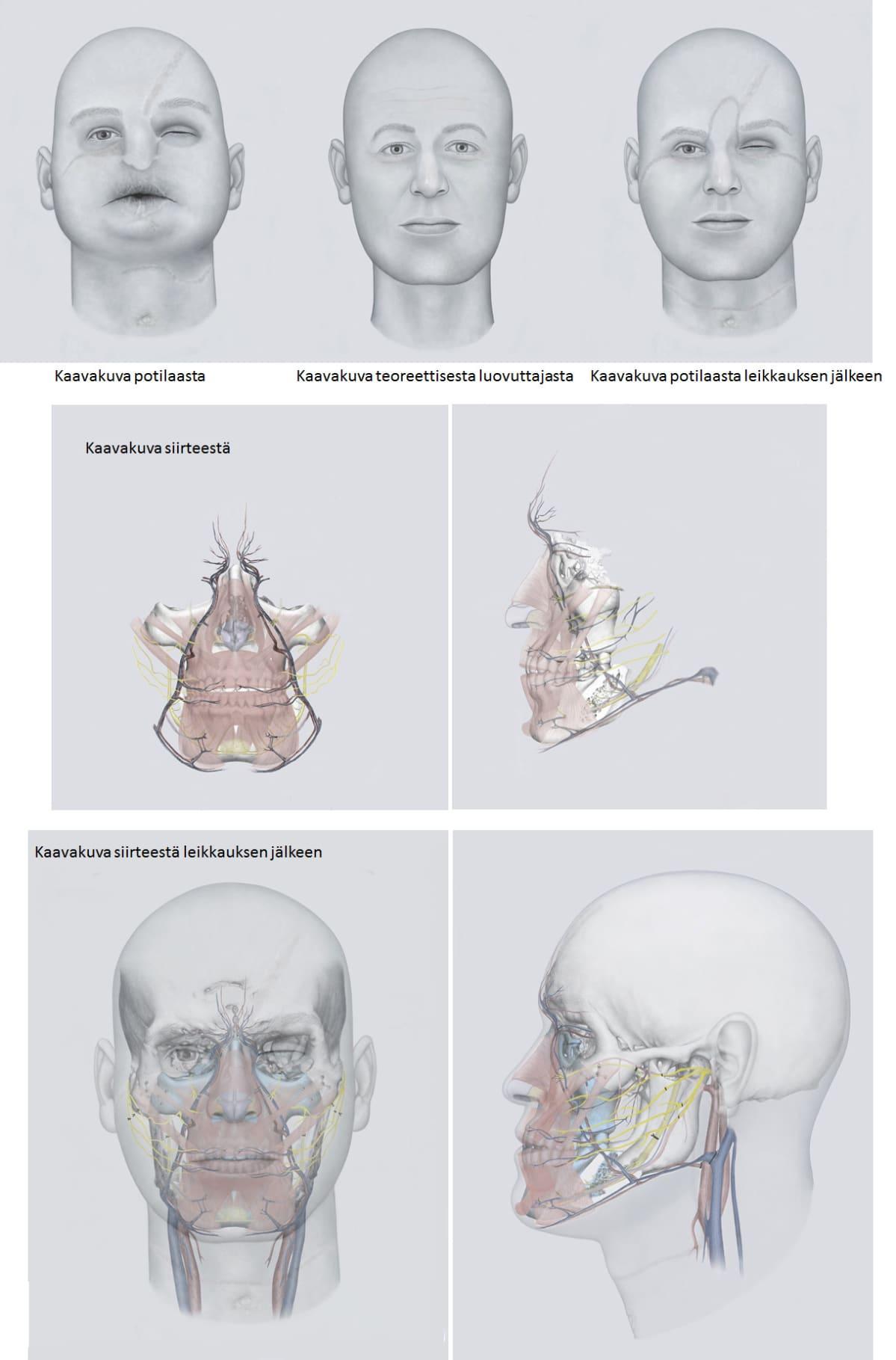 Havainnekuvia HUS:ssa tehdystä kasvojen siirteestä ennen ja jälkeen leikkauksen. Kuva ei esitä potilasta, vaan on piirtäjän näkemys asiasta.