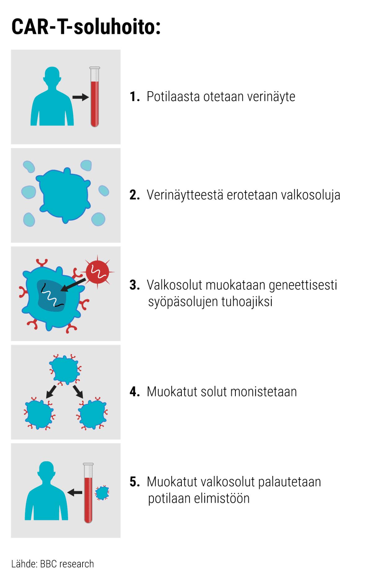 Kuvasarja joka kuvaa CAR-T-soluhoidon kulun. 1. Potilaasta otetaan verinäyte. 2. Verinäytteestä erotetaan valkosoluja. 3.  Valkosolut muokataan geneettisesti syöpäsolujen tuhoajiksi. 4.  Muokatut solut monistetaan. 5. Muokatut valkosolut palautetaan potilaan elimistöön. Kuvasarjan lähde BBC research.