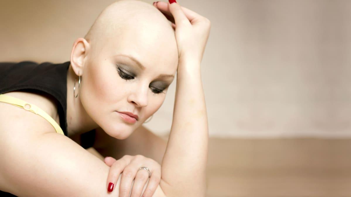 Syöpää sairastava, kaunis, kalju nainen