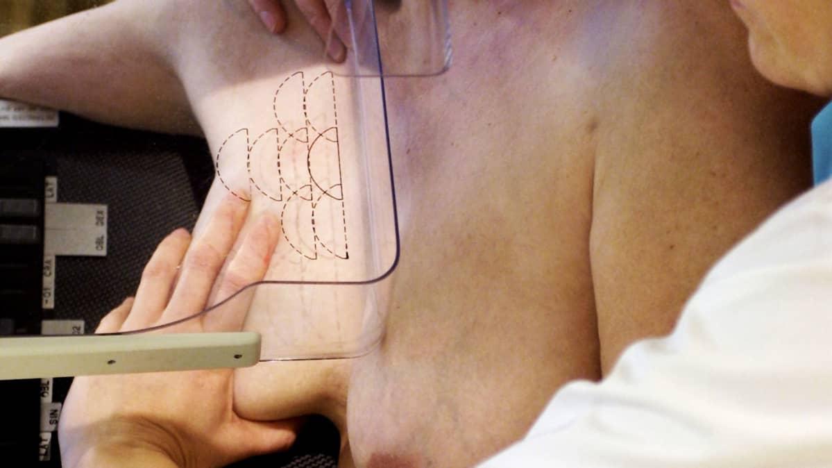 mammografiatutkimus