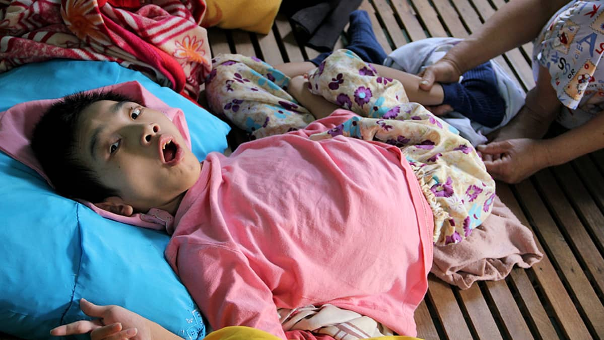 Agent Orange -kasvimyrkyn vuoksi kehitysvammaisena syntynyt vietnamilaislapsi Ho Chi Minh Cityssä sijaitsevassa  Tu Du -lastensairaalassa.