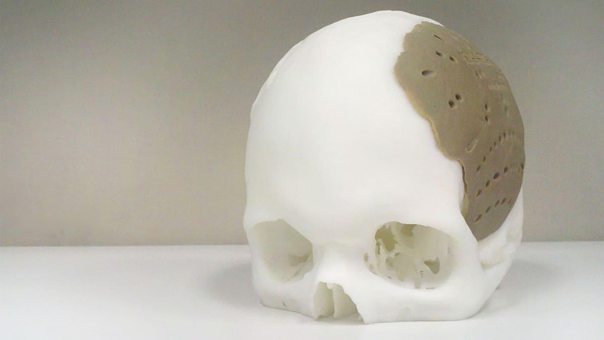 3D-tulostuksella luotu kalloimplantti.