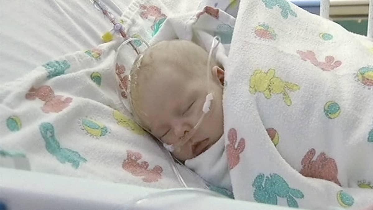 Kolmiviikkoinen Ashlyn Julian, jonka päässä ollut valtimonpullistuma korjattiin pikaliimalla kansasilaisessa sairaalassa.