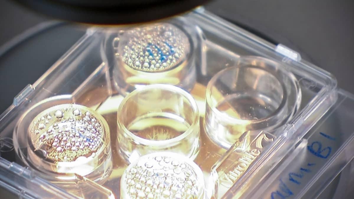 Kuva laboratoriomaljasta