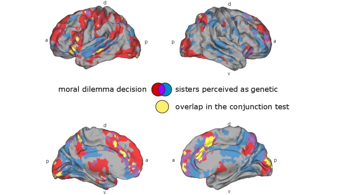 Neljä piirroskuvaa aivoista, joissa on eri väreillä merkitty poimujen ja lohkojen toimintaa.