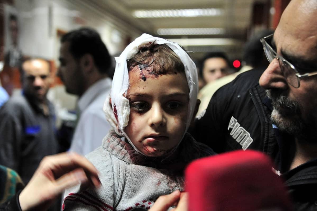 Isisin pommituksessa 21. helmikuuta haavoittunuta lasta hoidetaan sairaalassa Damaskoksessa. Kuvassa lapsi, jonka pää on sidottu.