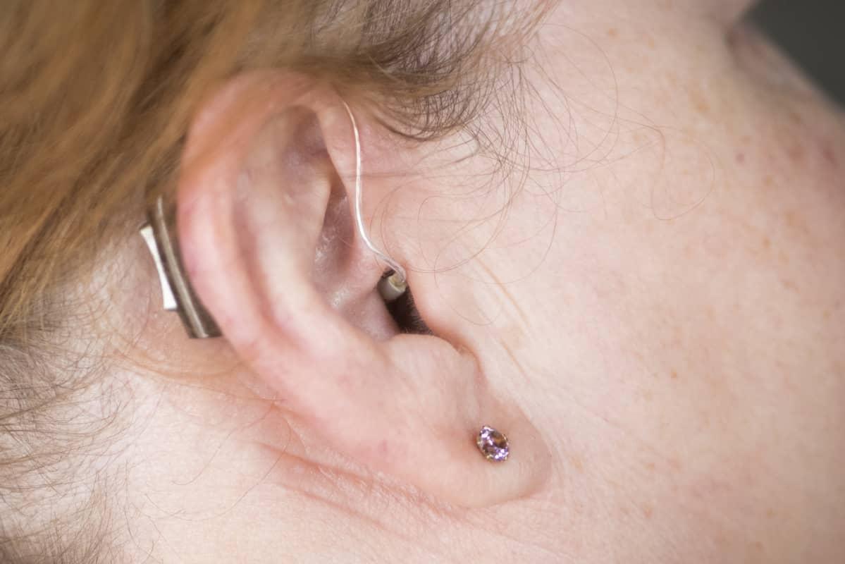 Naisen korvassa kuulolaite