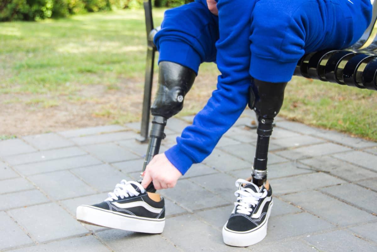 Rika Jylhä asettelee kenkäänsä paremmin proteesiinsa.