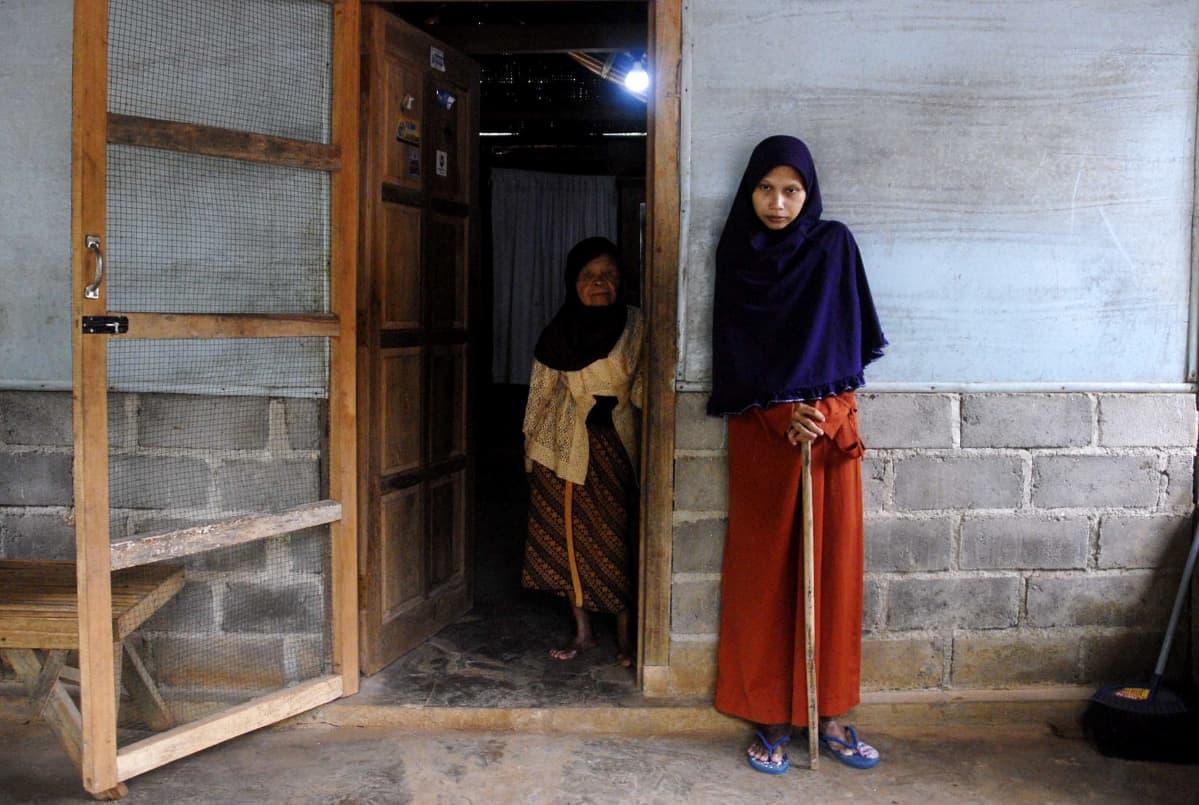 Indonesialaisnainen, jolla on harvinainen bambuselkäranka-reuma.