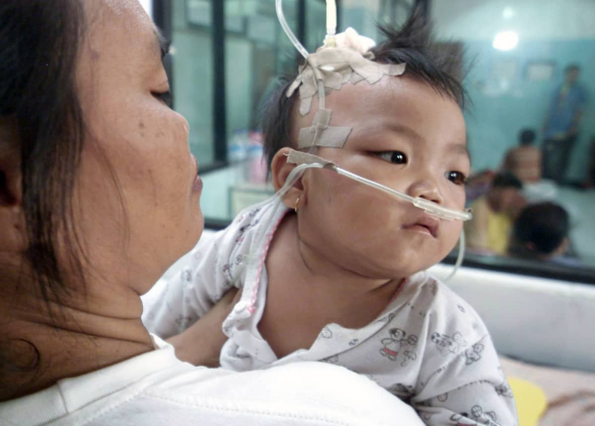 Vauvaa hoidetaan happiviiksillä sairaalassa Indonesiassa.