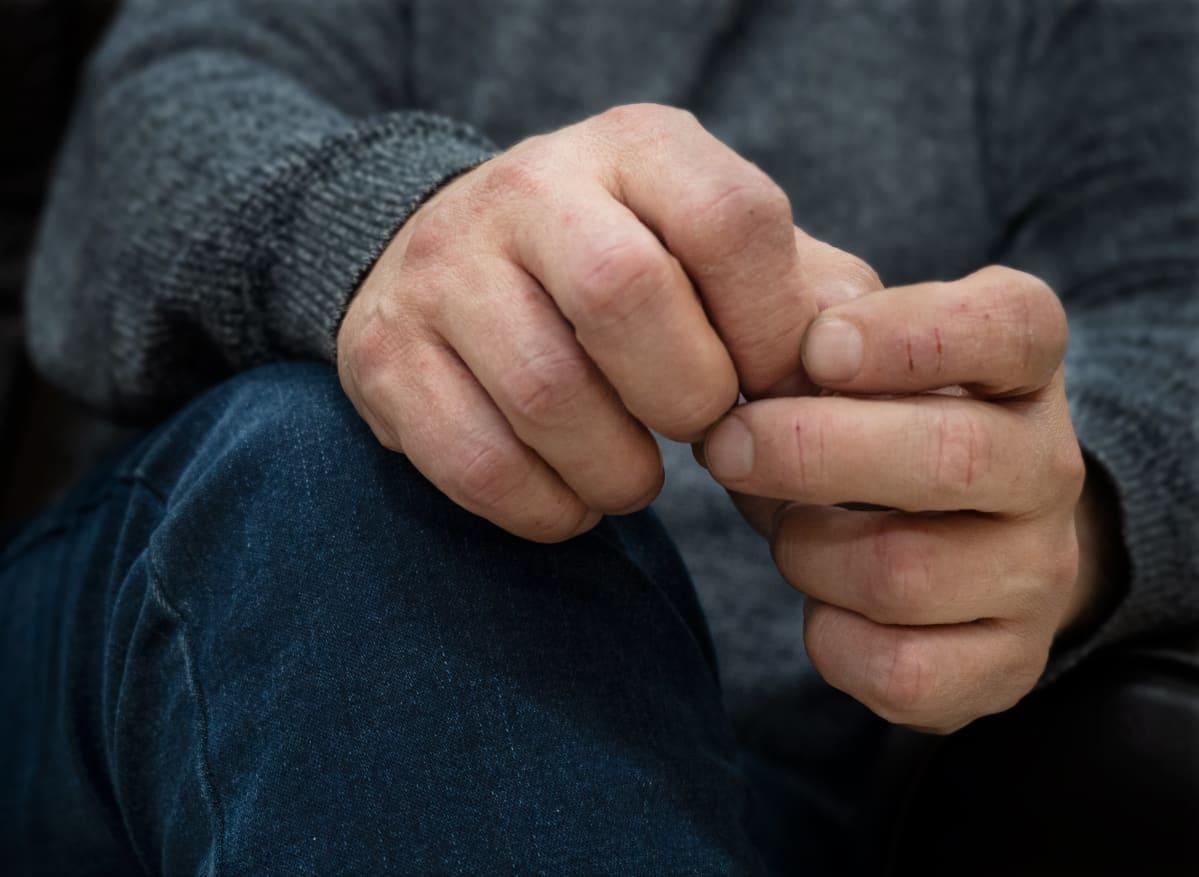 Anonyymin haastateltavan kädet