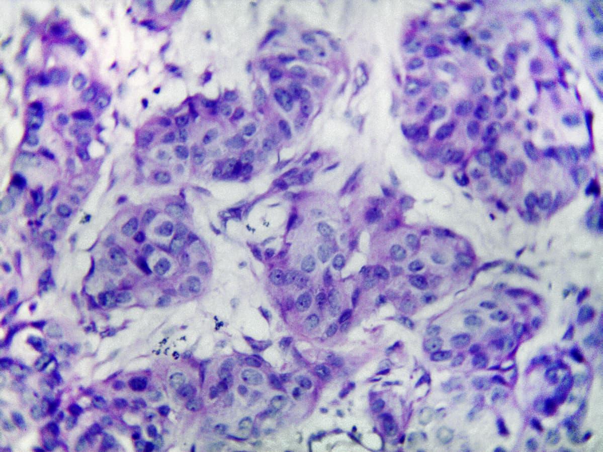 Rintasyöpäsoluja