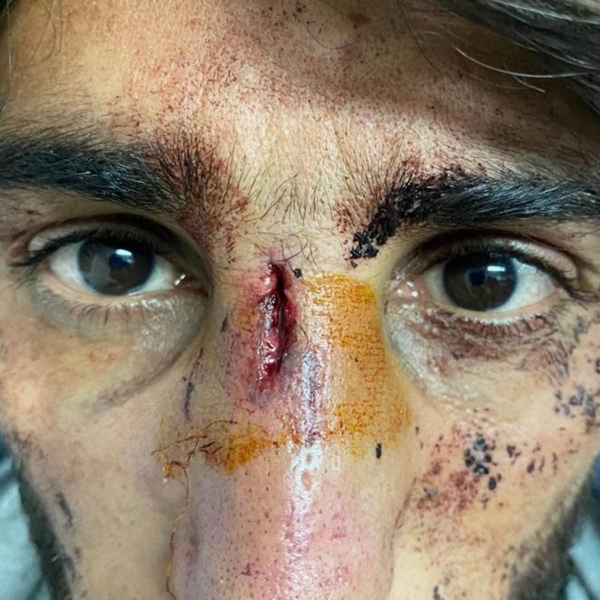 Pakistanilaismies kertoi Tanskan pakolaisneuvostolle kroatialaispoliisien pahoinpidelleen häntä.