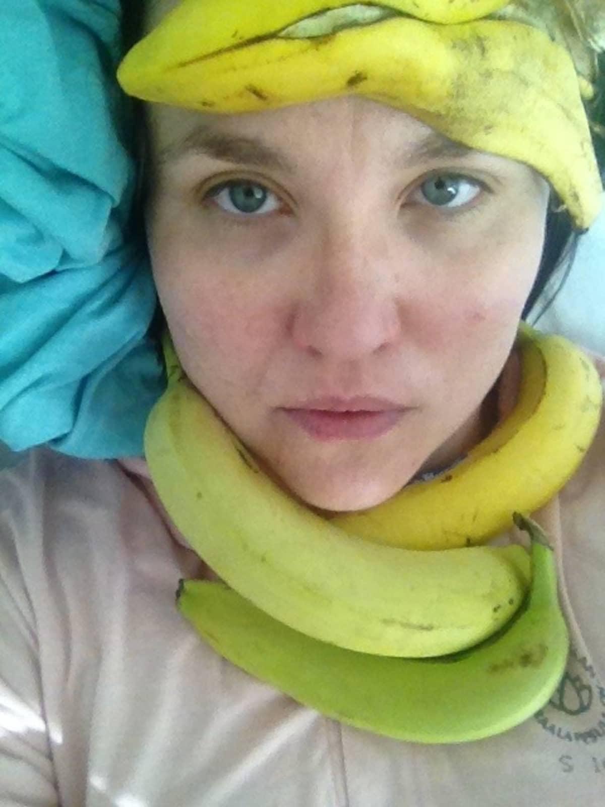 Maaria Oikarinen koristeli itsensä banaaneilla sairaalassa.