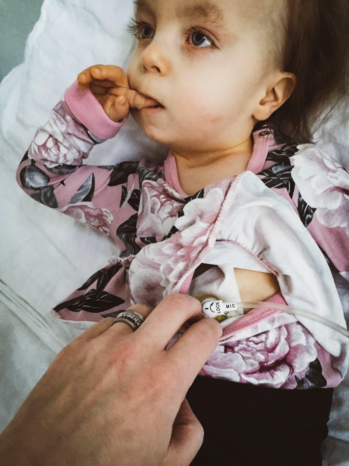 Hilda Tolosen vatsaan on kiinnitetty pegnappi, johon ruiskutetaan ruokaa letkun kautta.