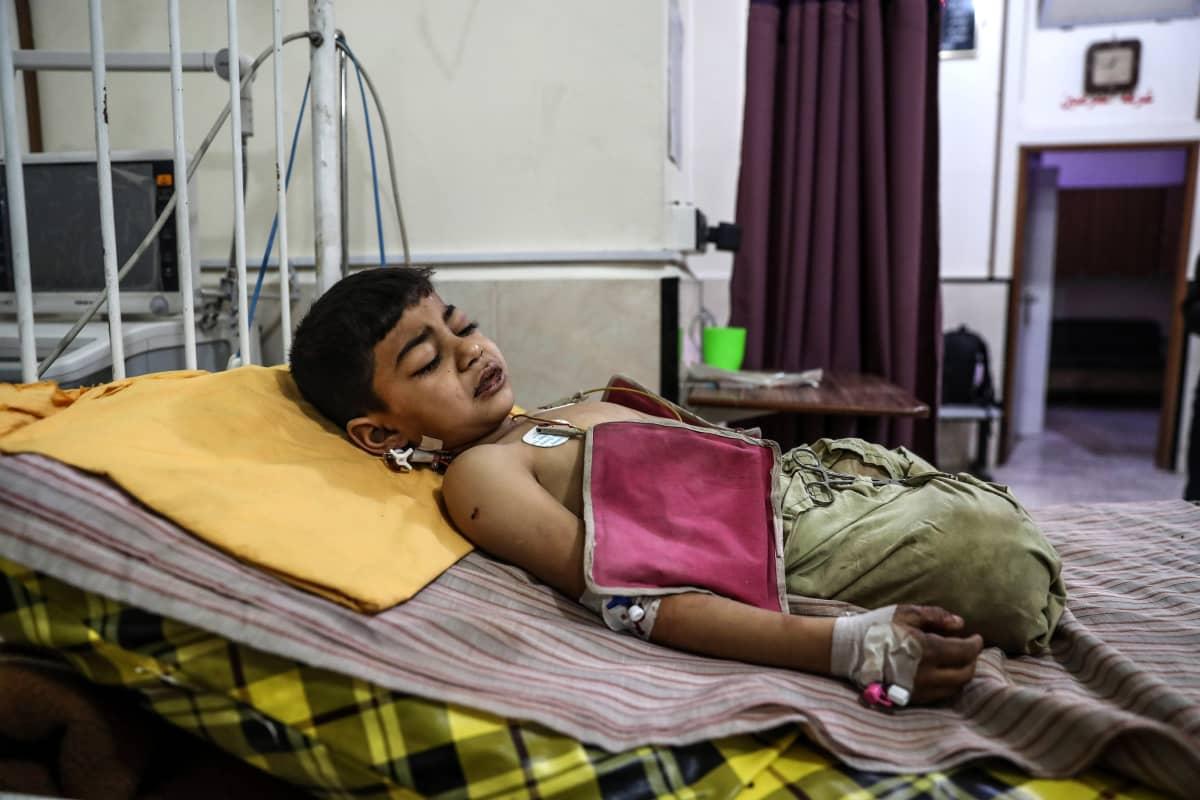 6-vuotias syyrialainen sotainvalidi.