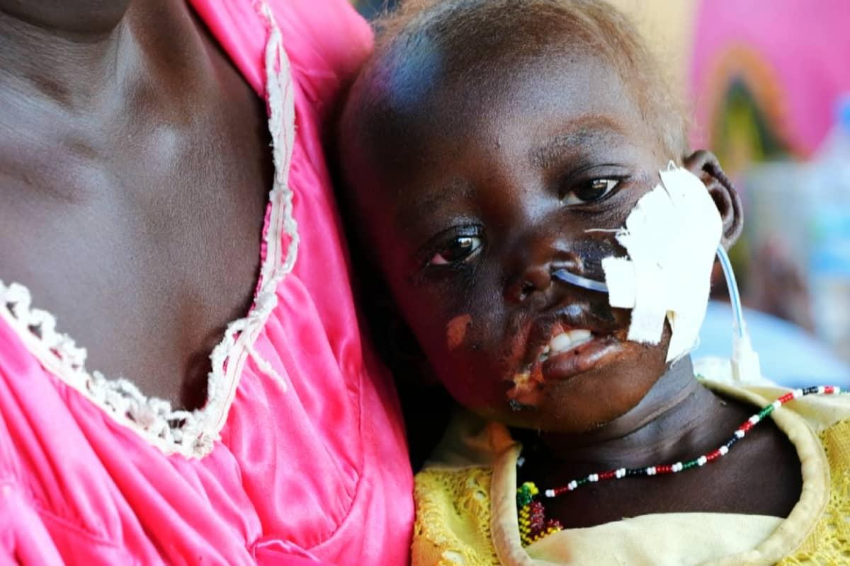 Kuvassa on nälkiintyvä pieni lapsi Etelä-Sudanissa.