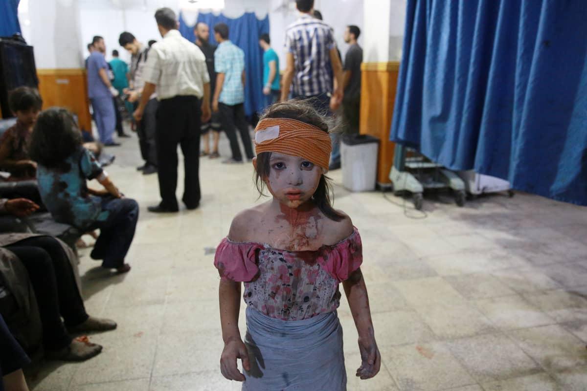 Pommituksessa haavoittunut syyrialainen pikkutyttö. Kuva otettu elokuussa 2015 kapinallisten alueella Damaskoksen itäpuolella.