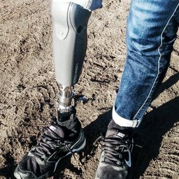 Akuutti: Ihmisen varaosat kehittyvät - jalkaan mikroprosessoriproteesi, leukaan kantasoluista kasvatettua luuta