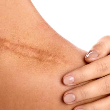 Tiedeykkönen: Haavanhoito - pihkaa, toukkia, tikkejä vai plastiikkakirurgiaa? Ja miten haavojen syntymistä voidaan ehkäistä?