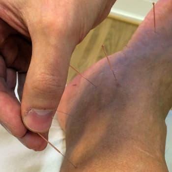 YLE Savo: Lääkäri: Olen käyttänyt akupunktiota jopa lapsettomuuden hoitoon
